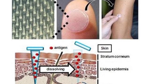 Új módszer válthatja ki az injekciós tűket