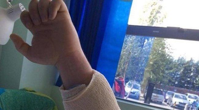 Pókcsípés rohasztotta szét a férfi karját – fotó