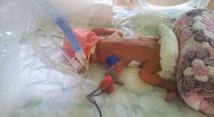680 grammos baba életét mentették meg Budapesten