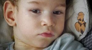 Őssejtbeültetés mentheti meg a kis Csongort