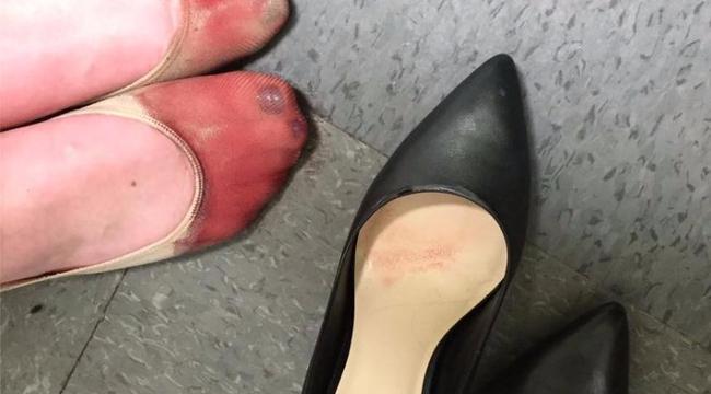 A kötelező magassarkútól néz ki így a pincérnő lába fotó