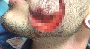 Kiharaptak az arcából egy darabot, mert beszólt egy nőnek - Durva fotók!