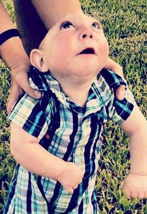 Elképesztő csoda! Már két éves a fél koponyával született gyerek