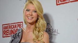 Brutál zúzódásokkal sokkolta rajongóit a színésznő - fotó
