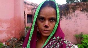 Horror: a dühödt férjlevágta az asszony orrát, mert elmaradt a hozomány (18+)