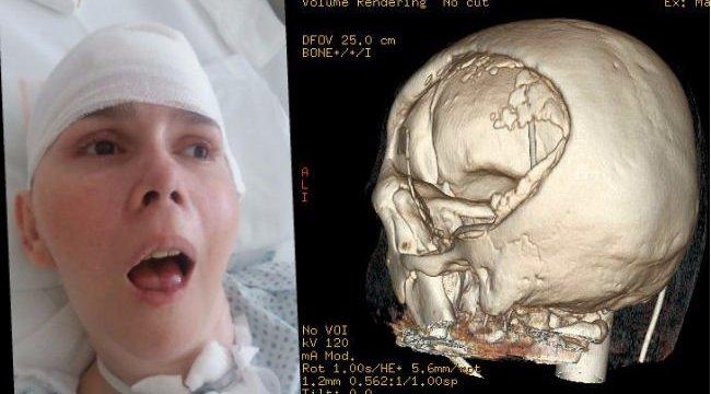 Életmentő koponya-transzplantáció: felébredhet a kómából Katalin