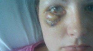 Majdnem kivégezték a nőt egy cipősarokkal – egy zacskó chips miatt