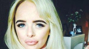 Visszataszító: hatalmasraduzzadtak a nő ajkai