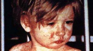 Már 16 áldozata van a román kanyarójárványnak – a legtöbben még csecsemők