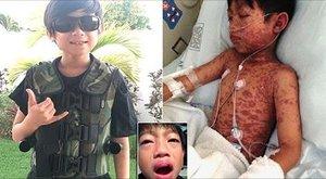 Lázas lett a kisfiú, a vény nélkül kapható gyógyszertől pedig megvakult
