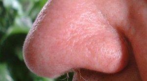Egy telek miatt leharapta haragosa orrának egy részét egy zalai férfi
