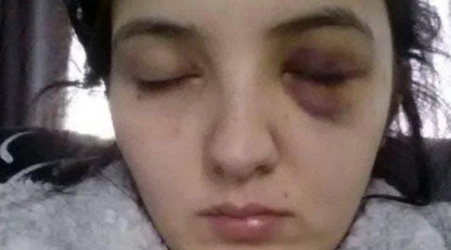 Brutálisan összetörte a szexi táncos arcát, mert az ellenkezett - videó