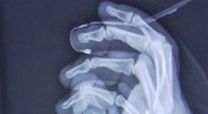 Öt ujját varrták vissza a magyar munkásnak Ausztriában