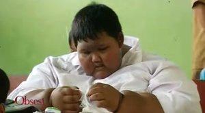 Ötórás műtéttel mentették meg a világ legkövérebb gyermekét