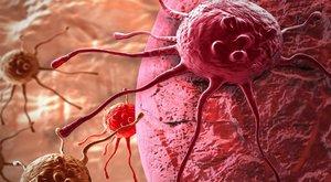 A rák már gyakoribb, mint a házasság