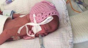5 nap különbséggel születtek a koraikrek - csoda, hogy életben maradtak