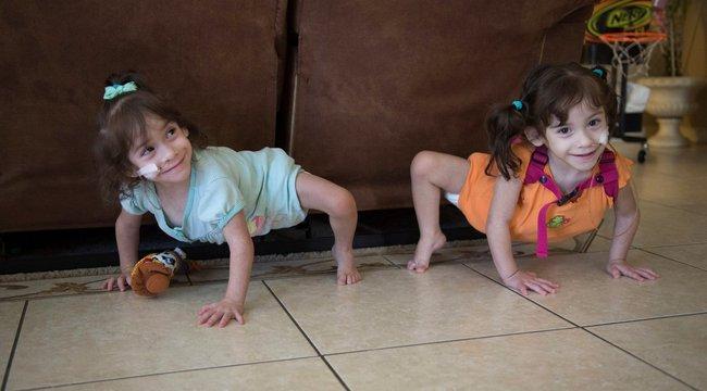 Kétéves korukban kezdhetik meg önálló életüket a sziámi ikrek