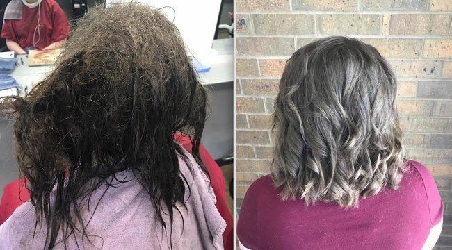 16 éves lány haja mutatja be, hogy elgyöngíthet a depresszió