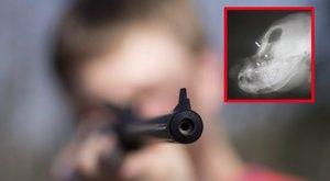 Kilencszer lőtték fejbe légpuskával Kabalát – 18+ fotók