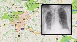 Fertőző tüdőtuberkulózist mutattak ki egy pécsi egyetemistánál