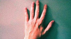 Inkább levágná a karját, minthogy tovább éljen a fájdalommal