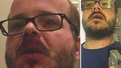 Kirúgták az újságírót megverő biztonsági őrt