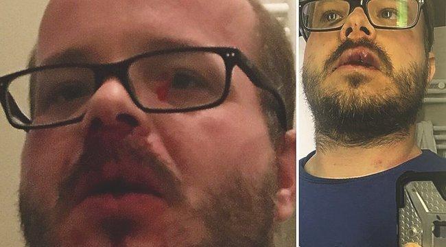 A KFC közölte, mi lett a megvert újságíró miatt indított eljárás vége
