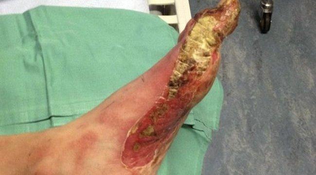Brutális fagyási sérüléseket szenvedett a dezodortól – sokkoló fotóval (18+)