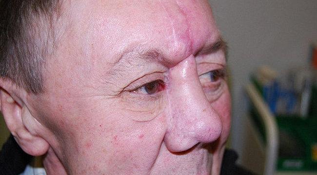 Döbbenet: lábából lett orra a rákos férfinak - durva fotók