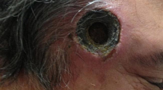 Sokkoló fotó: kilyukadt a kezeléstől a férfi feje