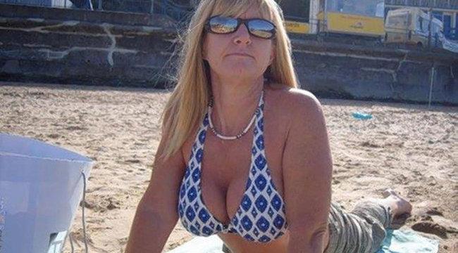 A nő testében robbant fel az implantátum - sokkoló fotó (18+)
