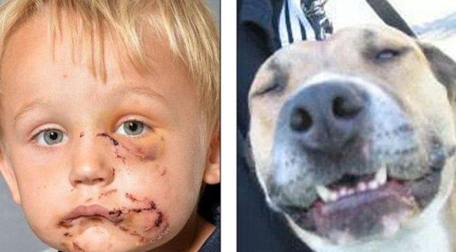 Kisfiú arcát marcangolta szét az eb - sokkoló fotók