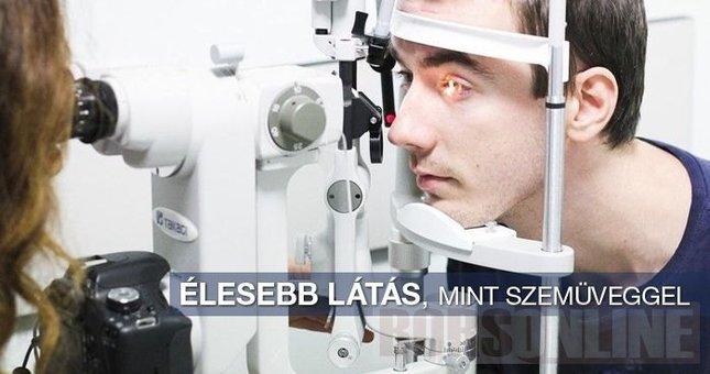 Mit érdemes tudni a Sasszem lézerkezelésről  (x). Magyarországon a  legnépszerűbb lézeres szemműtét ... 006269ff4e