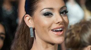 Háromszor operálták a szépségkirálynő orrát