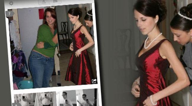 Felháborító: anorexiás lány fotóival hirdették a látványos fogyást