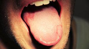 Harcias tini: a zaklató nyelve bánta a támadást