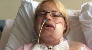 Felháborító: egy e-mail miatt műtötték le a fél arcát