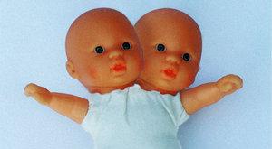 Ezrek csodálják a szerdán született kétfejű babát