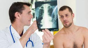 Kezelésre várva halnak meg itthon a rákos betegek