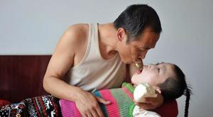 Szívszorító: 15 éve etetik szájukkal a beteg kislányt