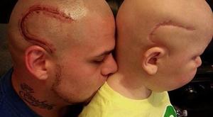 Megindító: magára tetováltatta kisfia szörnyű sebhelyét