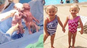 Aranyos: egymás kezét fogták az ikrek, mikor megszülettek, és azóta is elválaszthatatlanok