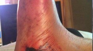 Az orvosok miatt veszítheti el lábát Béla – felkavaró képek! (18+)