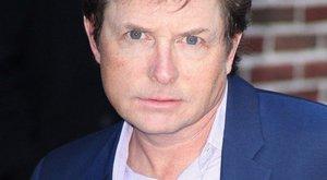 Michael J. Fox leépült