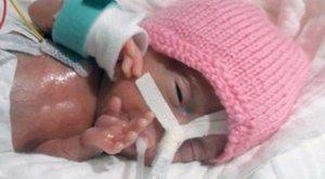 20 dekásan küzdött az életéért a világ legkisebbbabája
