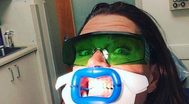 Brooke Shieldset megkínozta a fogorvosa