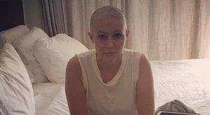 Kopaszon küzd a rákkal a sorozatsztár