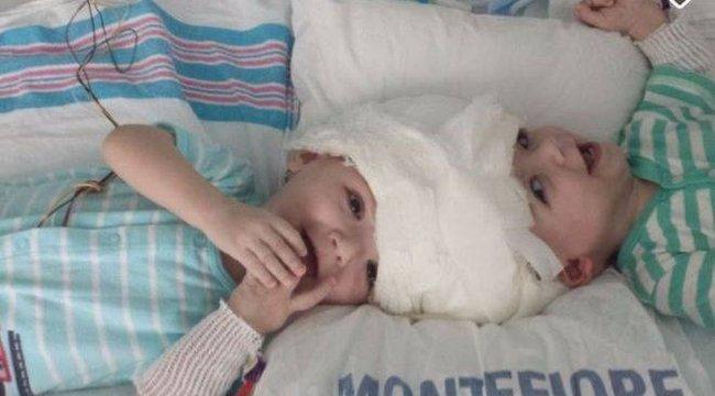 Bravúr: szétválasztották a fejüknél összenőtt ikreket