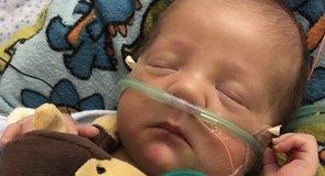 Dráma: az anya filmezte, ahogy 5 hónapos babájának a testén kívül is dobog a szíve