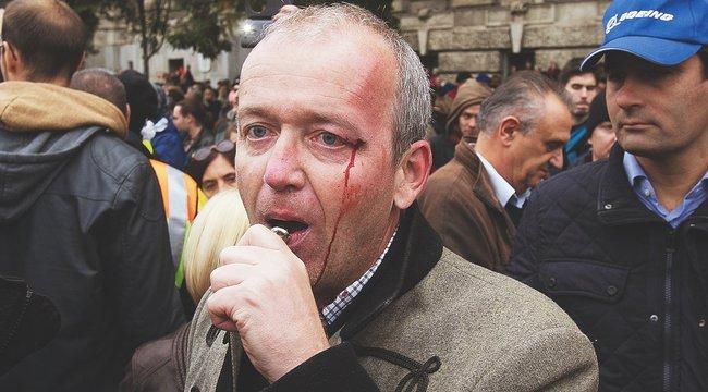 Verekedés a Kossuth téren: keresik a történész támadóját